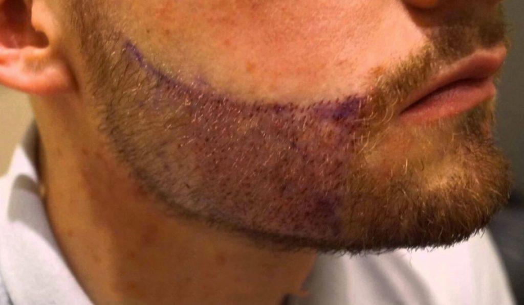 À quoi s'attendre d'une greffe de barbe en Turquie
